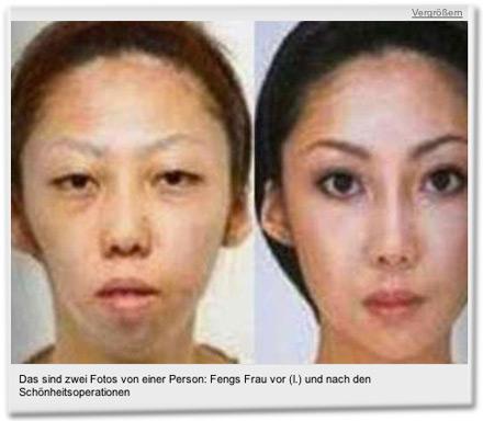 Das sind zwei Fotos von einer Person: Fengs Frau vor (l.) und nach den Schönheitsoperationen